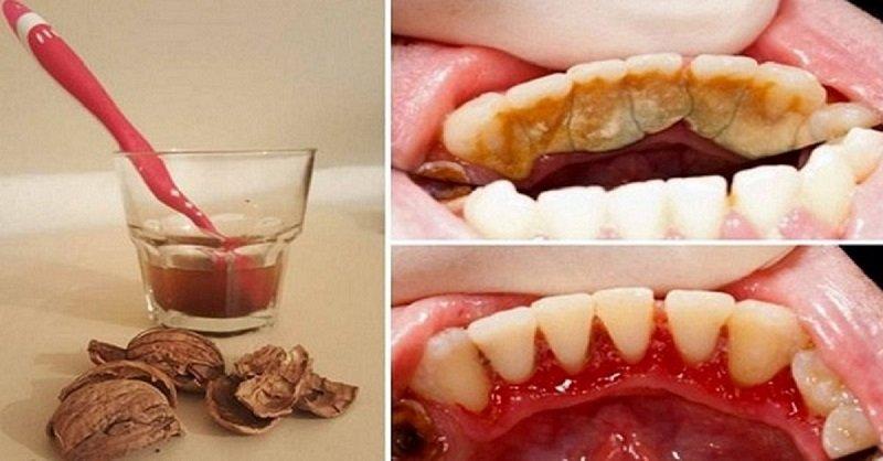 зубной камень фото