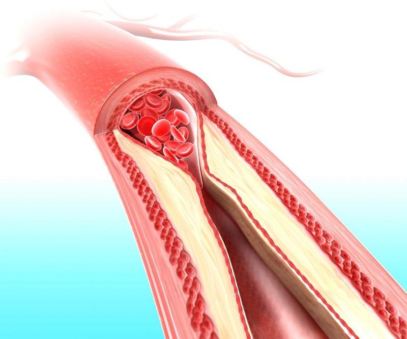 как быстро улучшить кровообращение