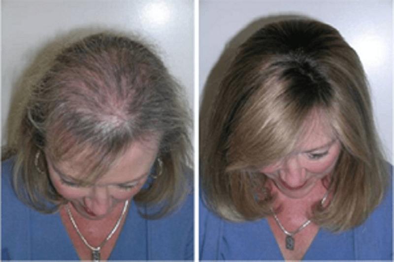 тоник для роста волос цена