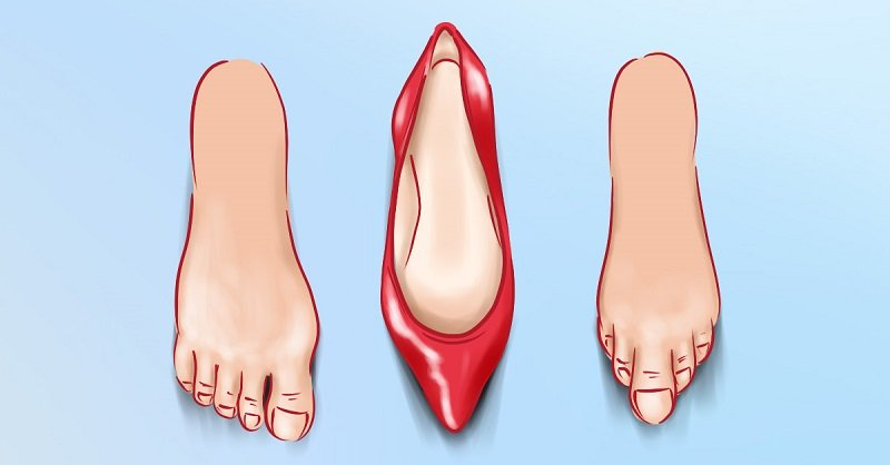 6 пар обуви, которые тебе не нужны! От них растет косточка, опухают ноги и болит голова.