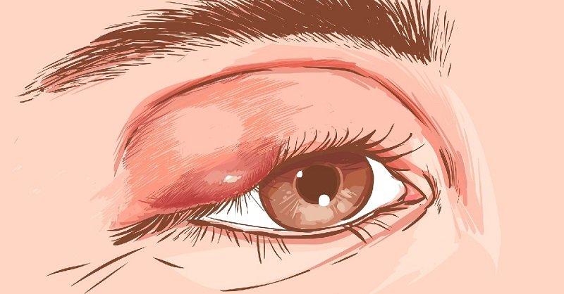 Как вылечить ячмень на глазу: 8 безопасных и эффективных способов