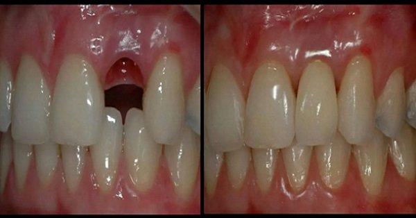 как вырастить зубы