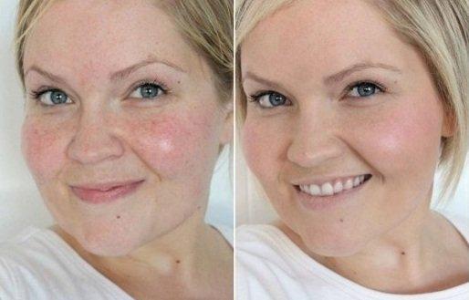 кожа девушки до и после