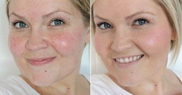 Как выровнять цвет лица: простая маска для решения распространенных проблем с кожей!
