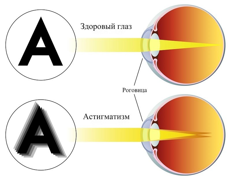 коррекция астигматизма