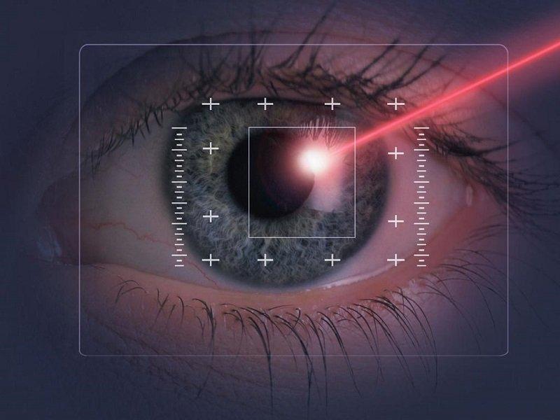 лазерная коррекция лечение астигматизма