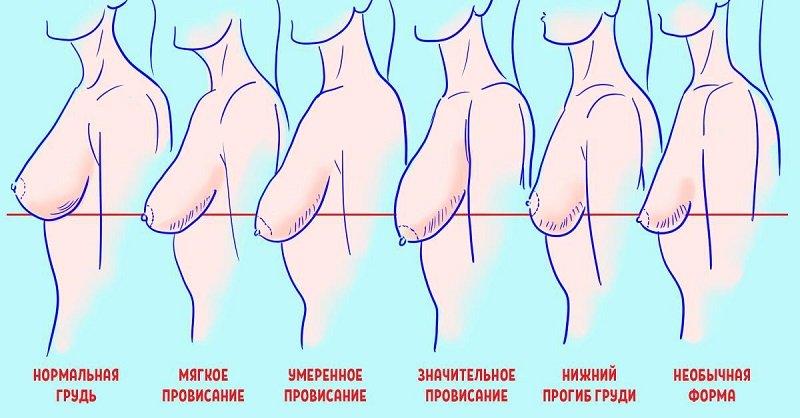Провисание женской груди: всему виной эти 7 вредных привычек!