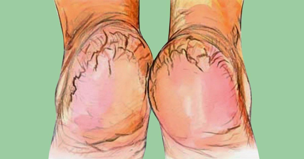 Картинки по запросу Ороговевшая кожа ног? Это средство лучше пемзы и даже электрической пилки!