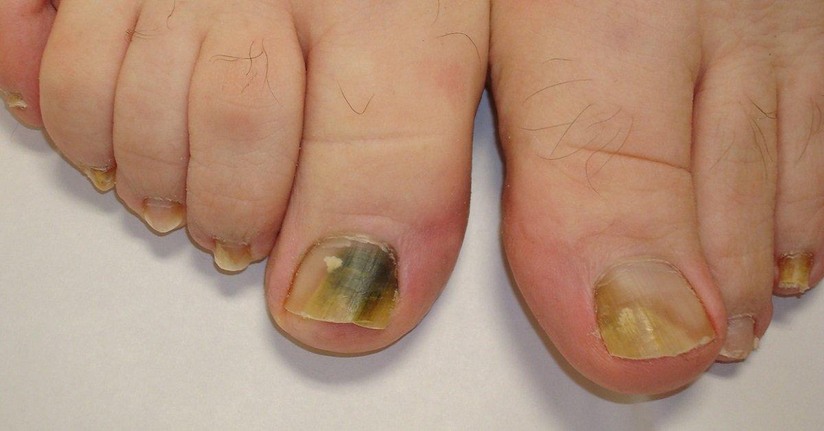 Фото заболеваний ногтей на ногах