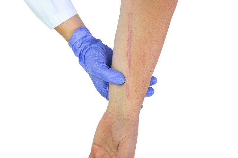 лечебные свойства алоэ при артрите