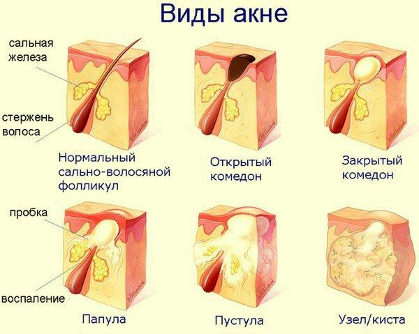 Боли в шее у подростка лечение