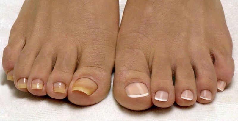 грибок ногти больших пальцев на ногах