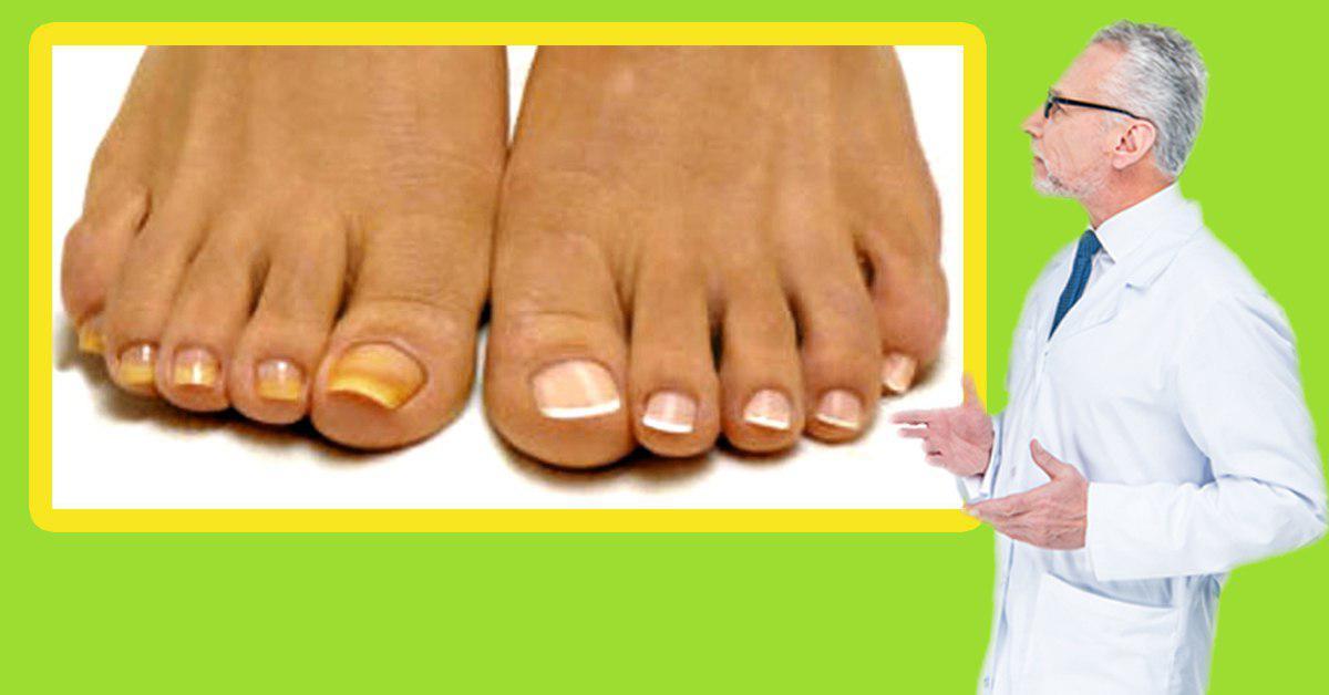 Эффективность лечения грибка ногтей