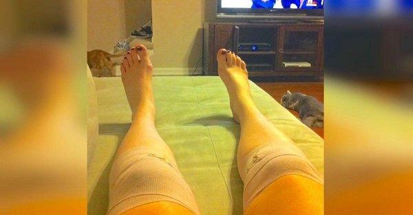 боль в коленах