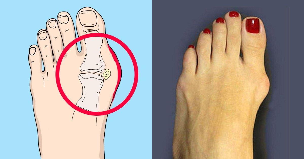 Как убрать косточку на ноге народными методами