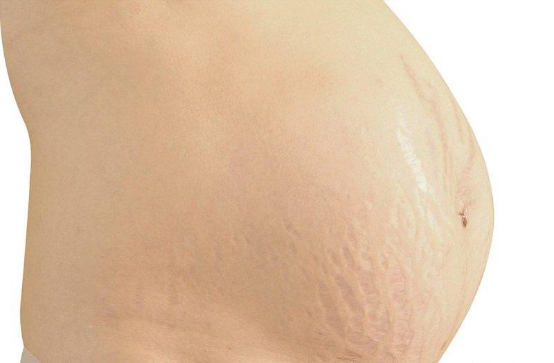 strie po tehotenstve