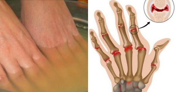 Лечение суставов бальнео где колени и суставы врач балаклея