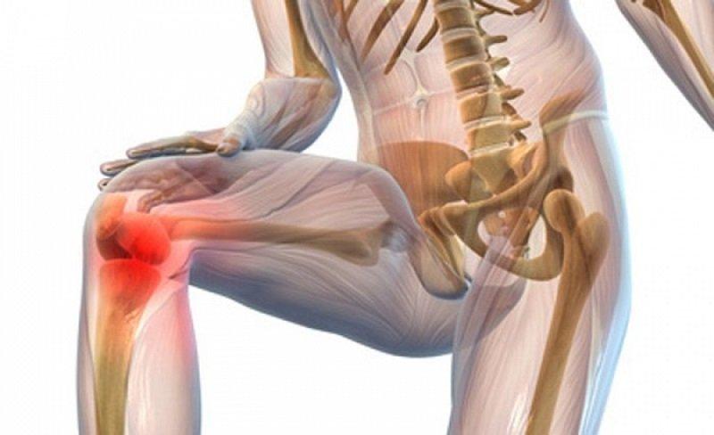 silná bolesť kolena