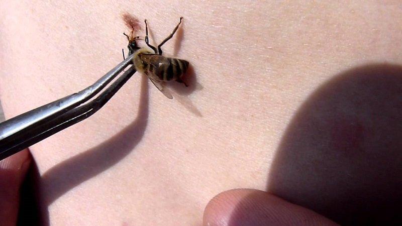апитерапия лечение укусами пчел