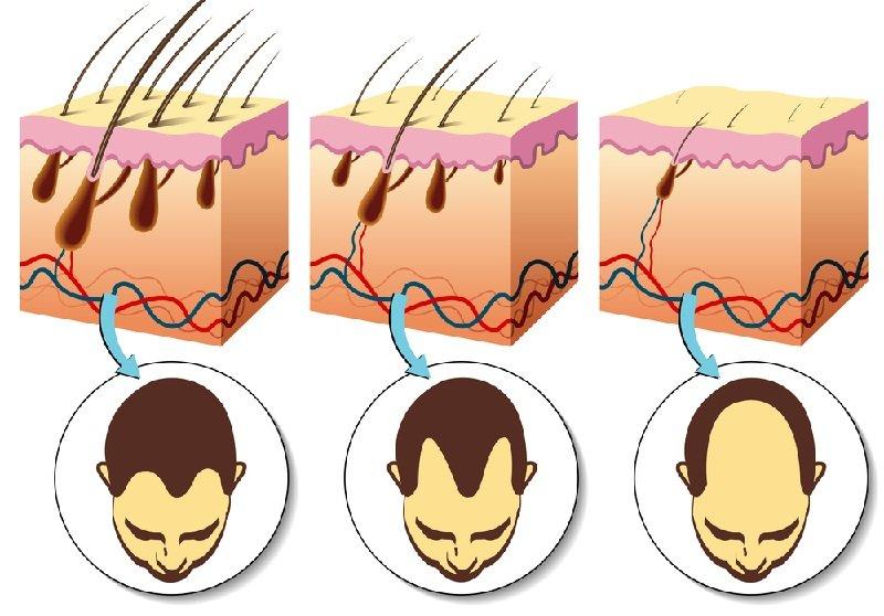 лечение выпадения волос у женщин в домашних условиях