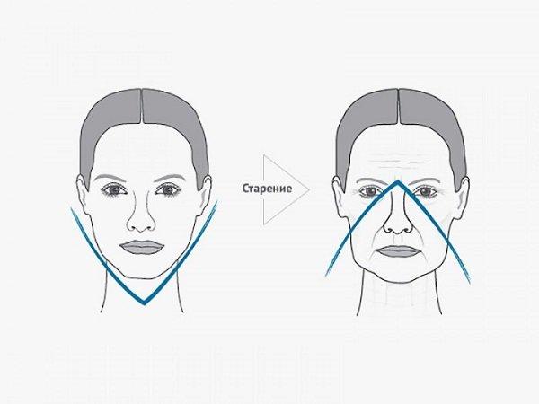 Картинки по запросу бульдожьи щеки на лице