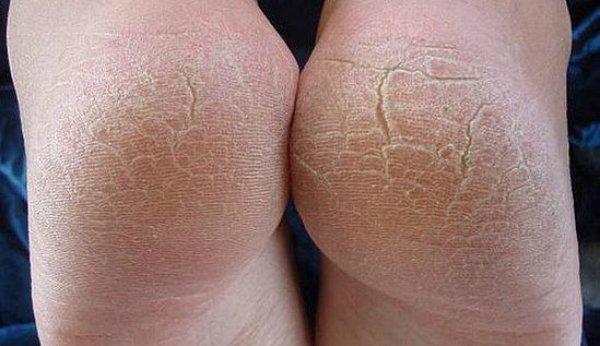 Как убрать грубую кожу на пятках в