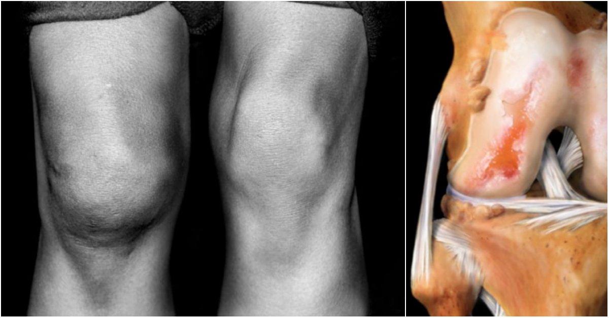 Мед при артрозе коленного сустава размер страховой выплаты сотрудникукурсантумчс после артроскопии коленного сустава