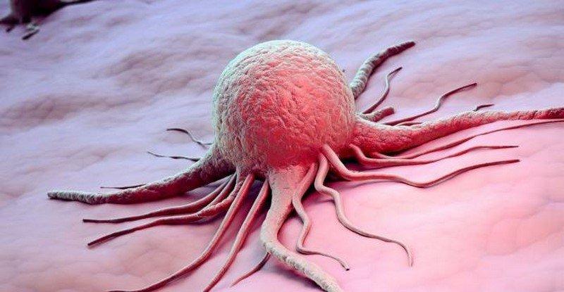 как вылечить рак