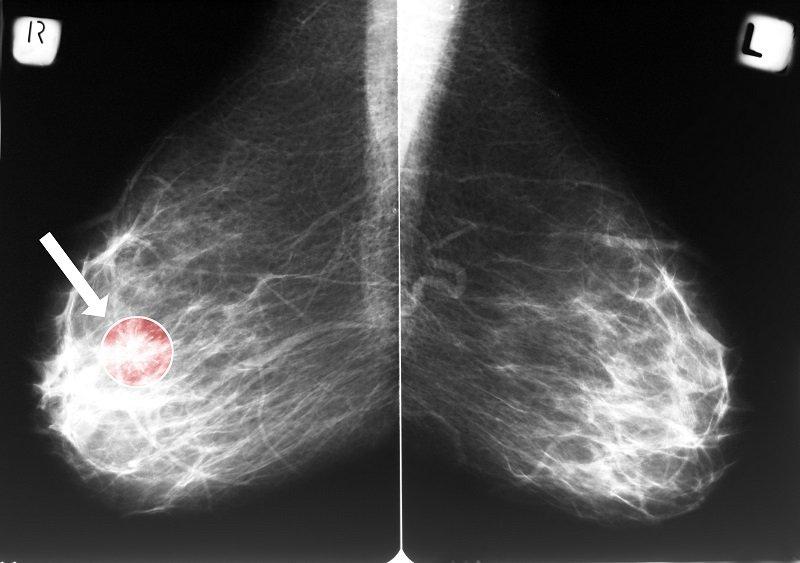 фольга и рак