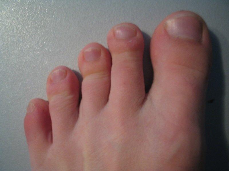 Фото пальцы на ножках у девушки, пацан ебет раком девку в юбке