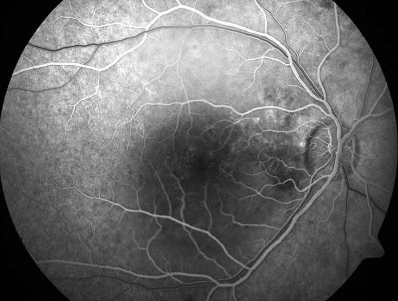 все причины ухудшения зрения