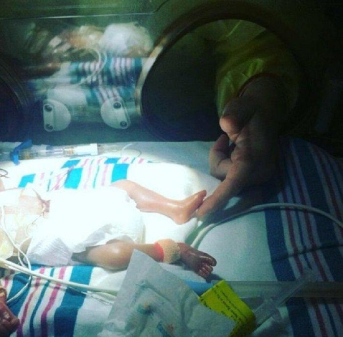 новорожденный недоношенный ребенок фото