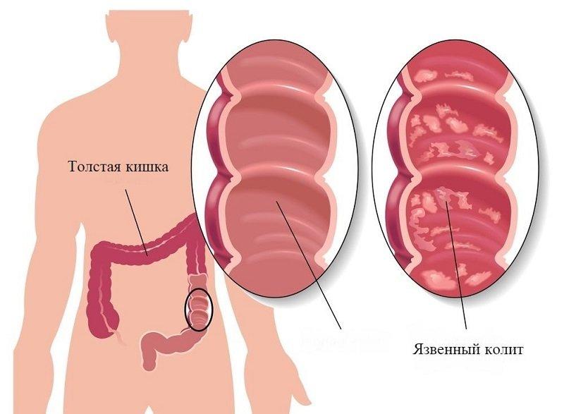 нормализация микрофлоры кишечника народные средства