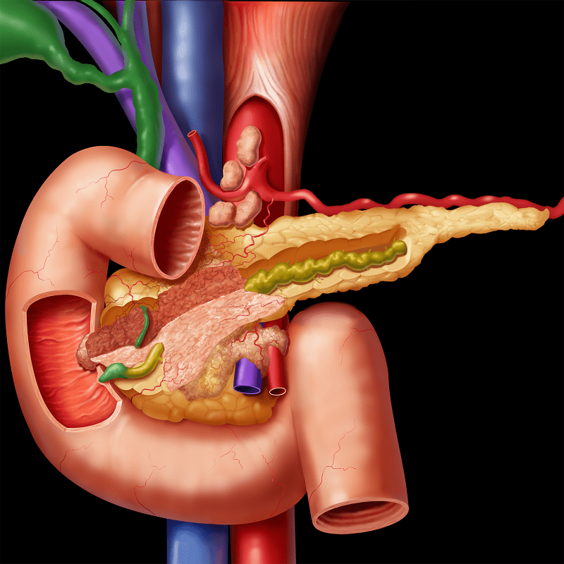 chronická pankreatitída