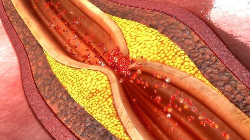 образование тромба стадии