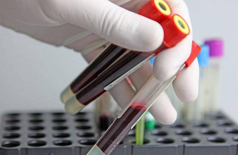 анализ на белок