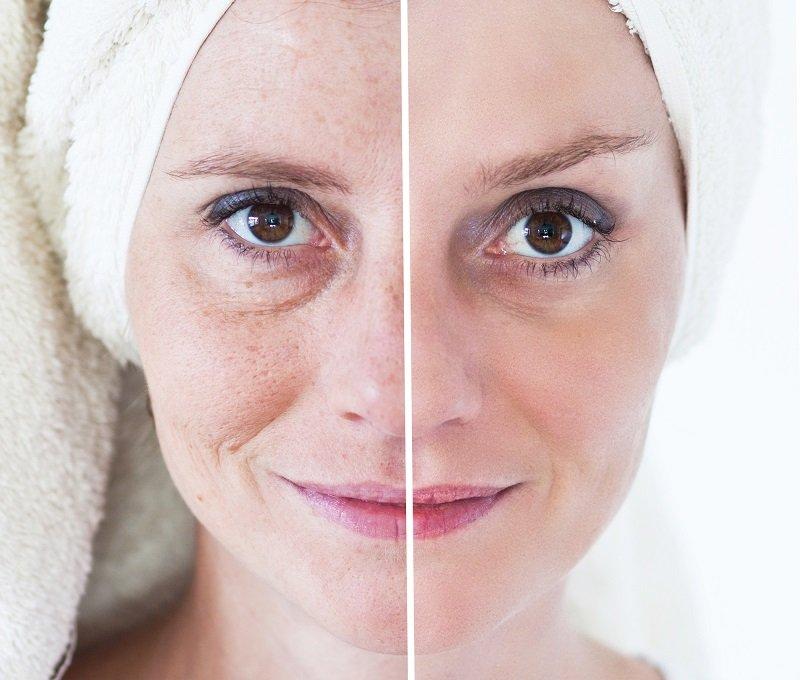 домашний крем для подтяжки кожи лица