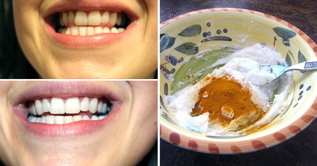 отбеливание зубов treswhite supreme