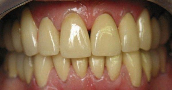 Натуральные средства для отбеливания зубов. Верни своей улыбке сияние!