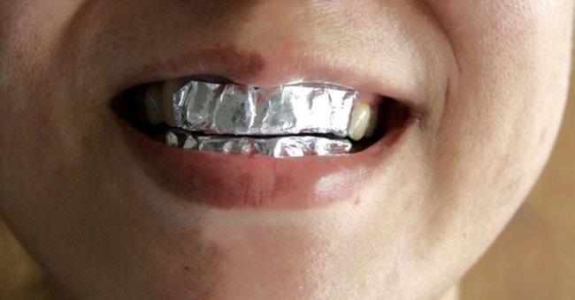 фольга на зубах