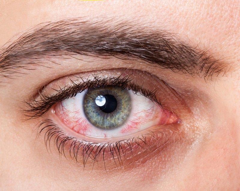 диагностика болезней по внешнему виду
