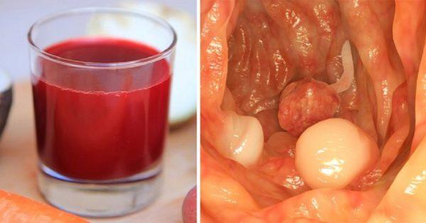 Напиток австрийского доктора Рудольфа Бреуса излечил около 45 000 больных раком!