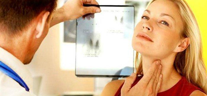 аболевания щитовидки