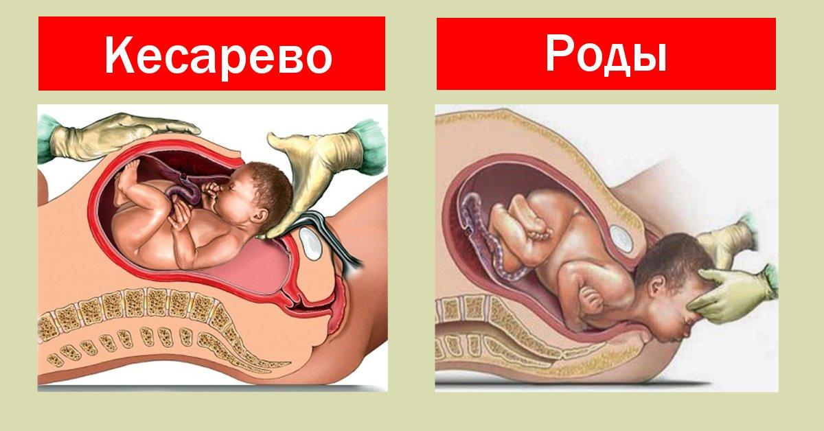 Почему делают кесарево сечение после эко