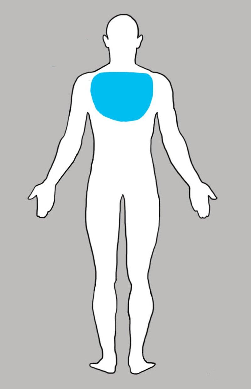 боль в верхнем отделе спины