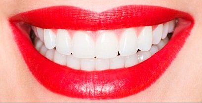 красивый зубы