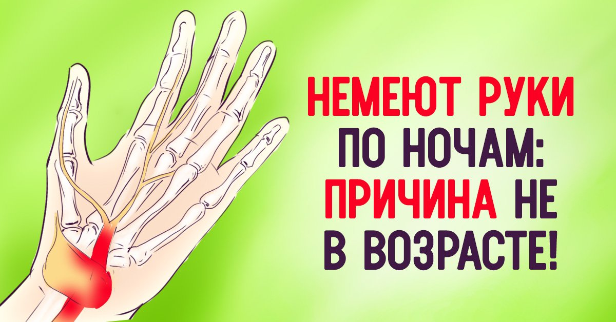 Немеют кисти рук во время сна причины