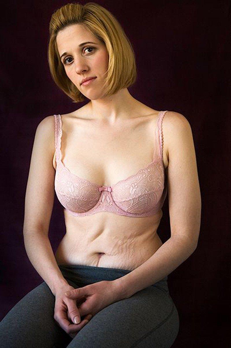 девушка похудела на 50 кг