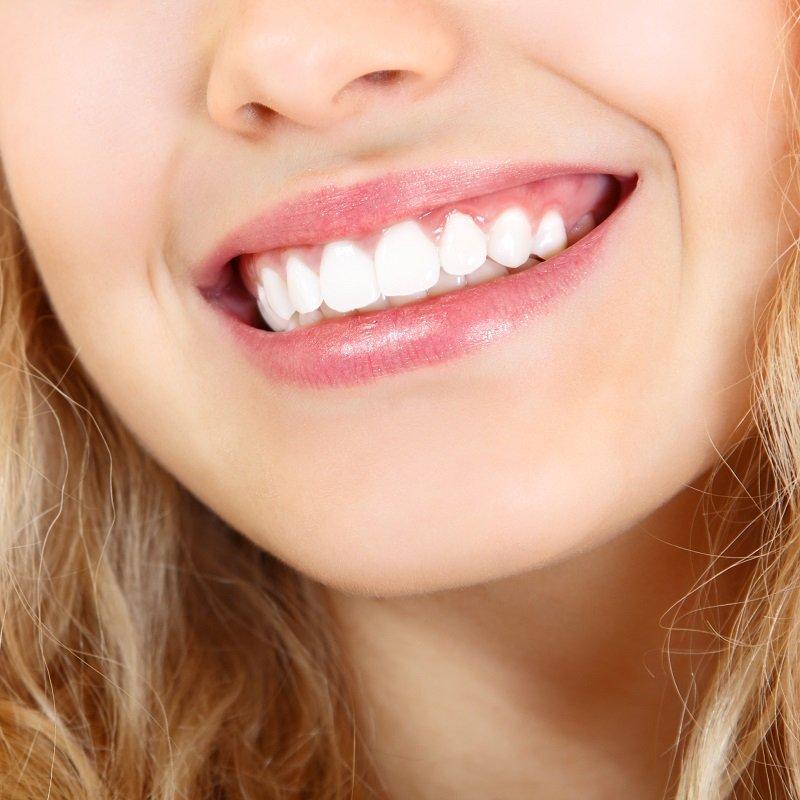 зубы кариес