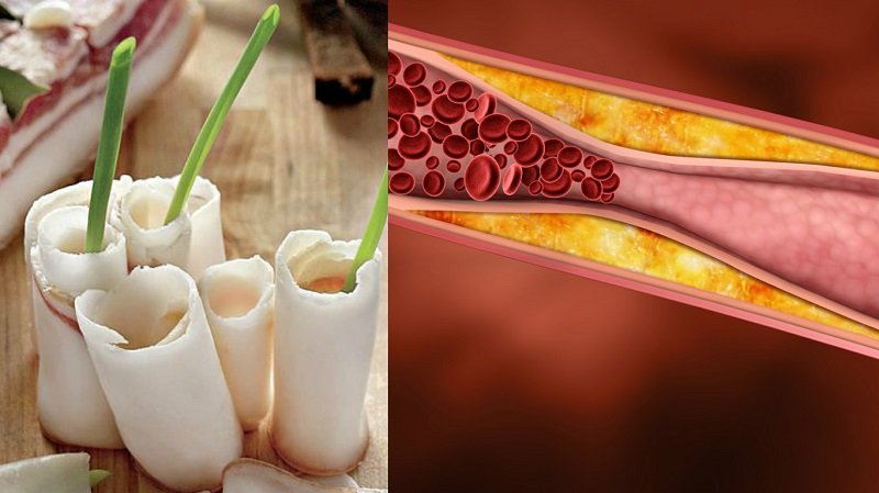 сколько холестерина в крови